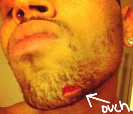 chris brown beat up by drake