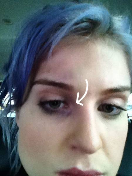 Kelly Osbourne Get A Black Eye!