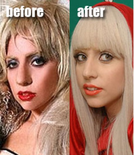 Lady Gaga plasci surgry over the years