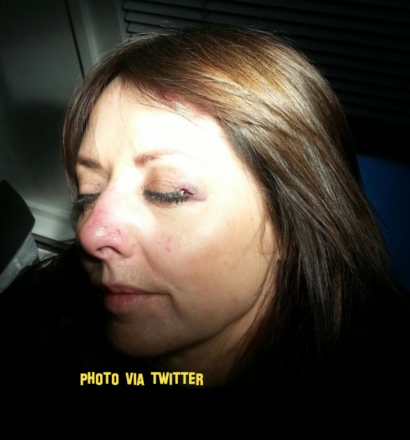 carol vorderman broken nose photos here