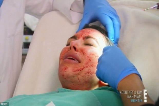Kim Kardashian Get's A Blood Facial
