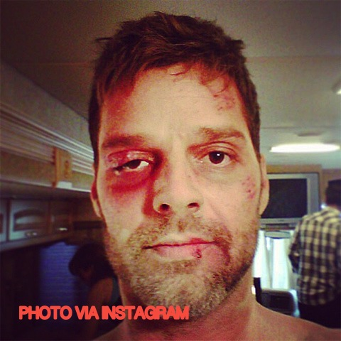 Ricky Martin Get's Beaten Up For New Music Video!
